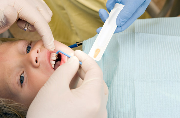 Young boy receiving fluoride treatment at Geelan Dental Care in Portland, OR